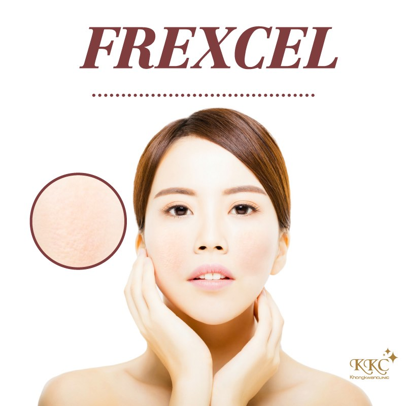 frexcel